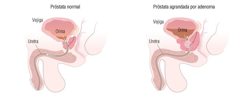 problemas después de la próstata