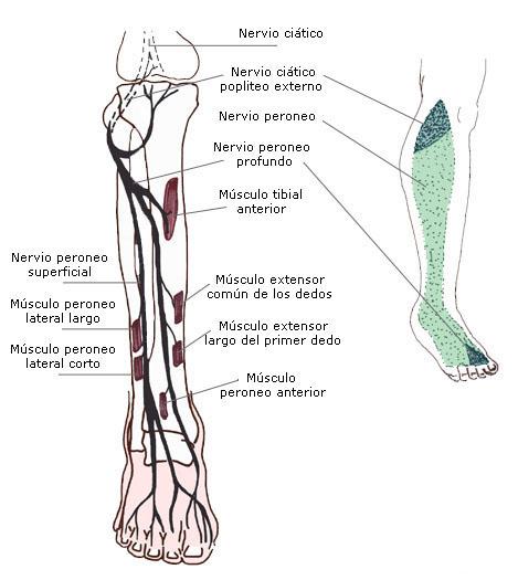 Guía clínica de Neuropatía peronea (pie caído)